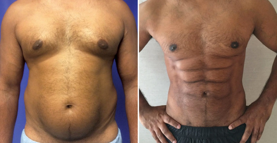 A New Plastic Surgery Procedure Can Sculpt Your Belly Fat into a Six Pack
